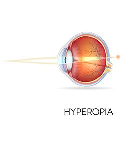hyperopia